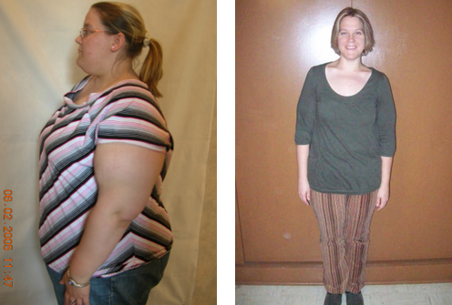 50 pound weight loss extra skin image 5